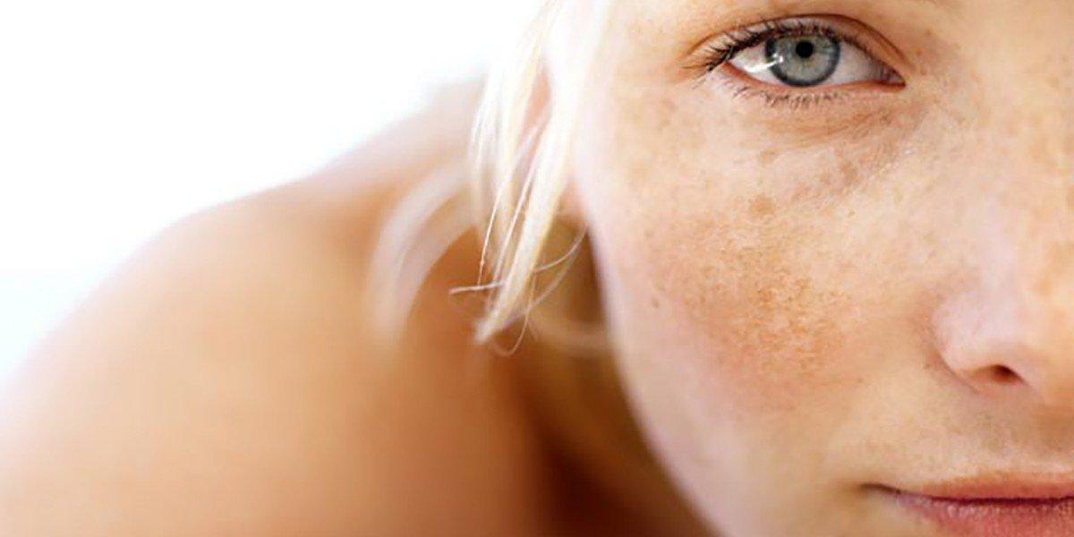 пигментни петна, кожа, кожни петна, петна по кожата